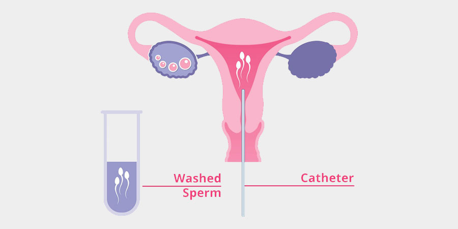 What is Artificial Insemination?: Uses Procedure & Success