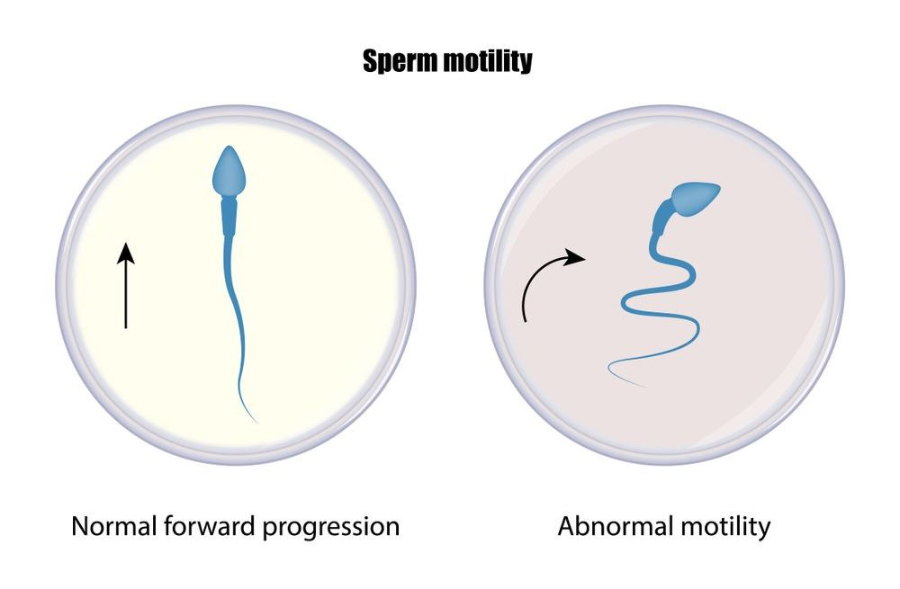 Abnormal Sperm Production