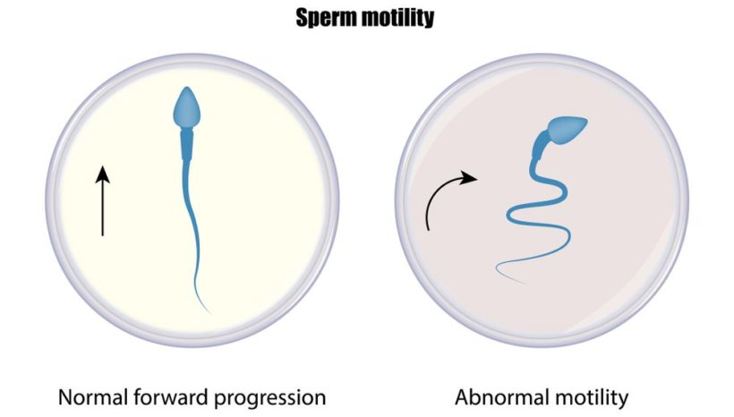 Let's learn about Abnormal Sperm Production